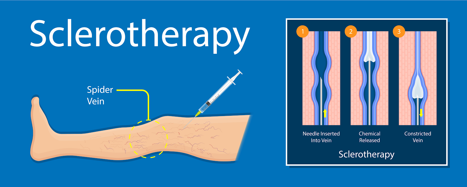 Infographic displaying the sclerotherapy process