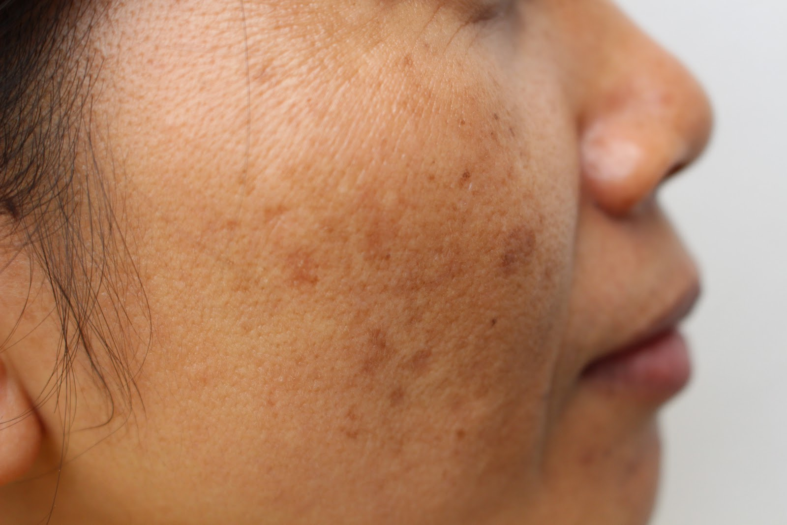 Woman with Varicose veins on face