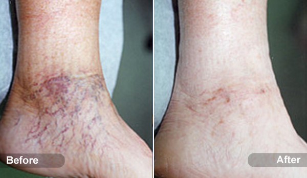 Sclerotherapy Treatment Spider And Varicose Veins St Louis