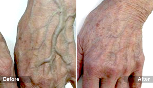 Hand Veins Treatment