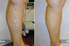 EVLT - Varicose Vein Treatment