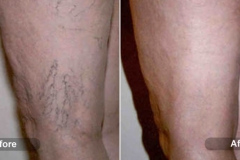 Sclerotherapy - Spider Vein Treatment