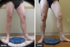 leg veins before after